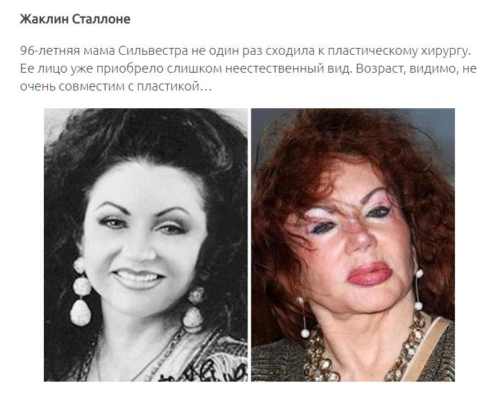 12 знаменитых женщин, побывавших в руках хирургов